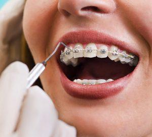 Apparecchio denti Varese